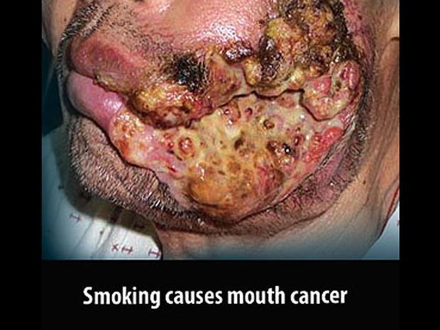 mauritius2-tobaccowarninglabel.jpg