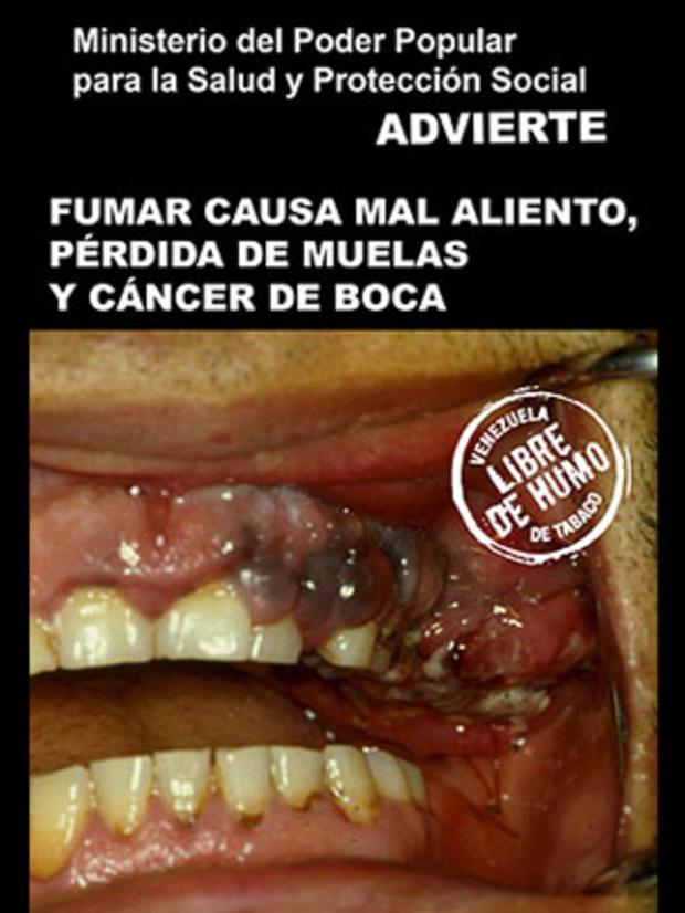venezuela2-tobaccowarninglabel.jpg