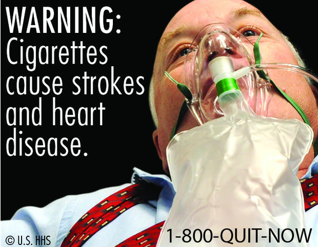 Cigarettes cause strokes and heart disease