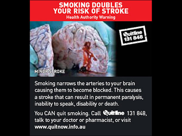 Australia's graphic tobacco warning labels