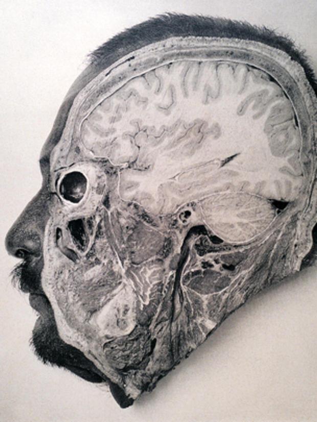 psychiatryburns14.jpg
