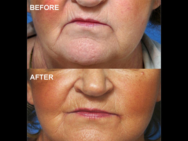Chubby cheek surgery - 13 bizarre but popular plastic surgery