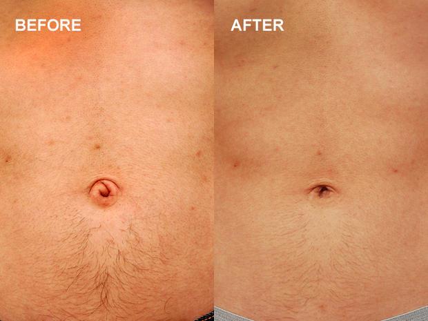 bellybuttonsurgery.jpg