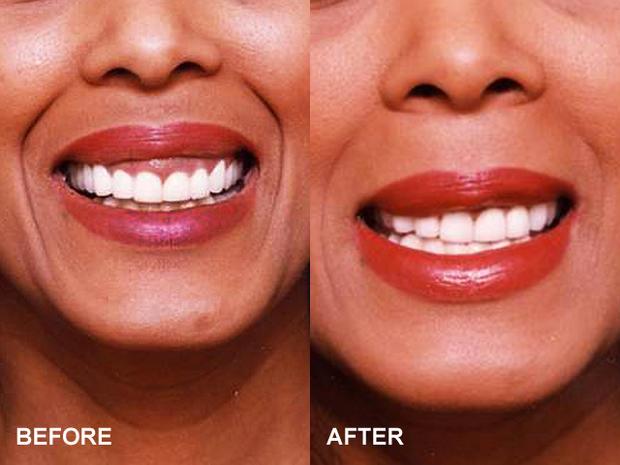Upper lip lift - 13 bizarre but popular plastic surgery