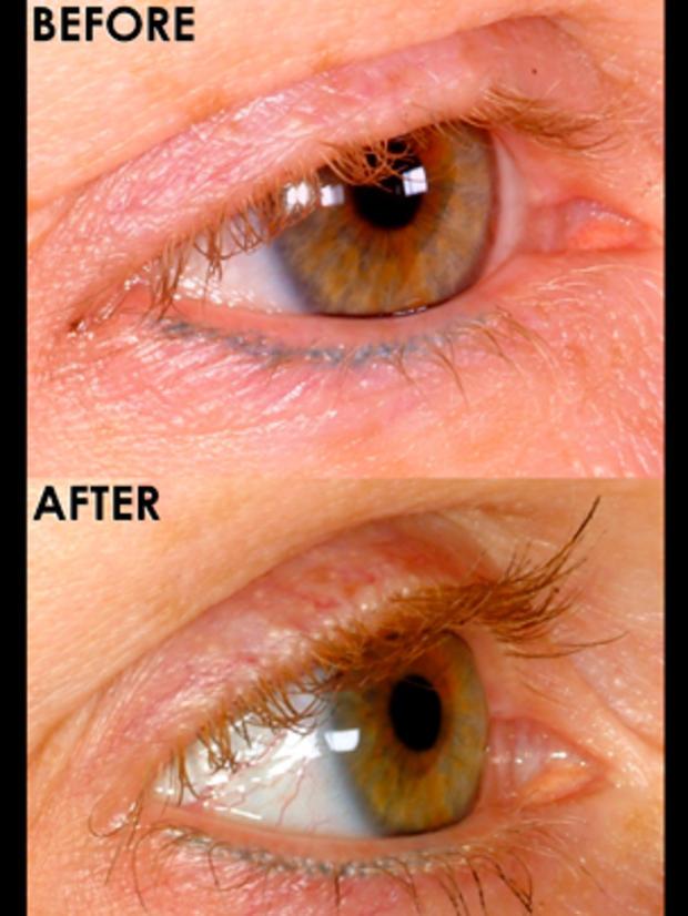 eyelashtransplant.jpg