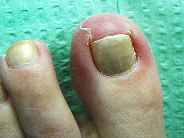 Ingrown toenails - Ouch! 7 nasty foot flaws and how to fix them ...