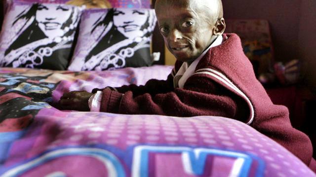 progeria-AP11082419493.jpg