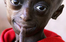 Progeria: First black child with rare aging disease