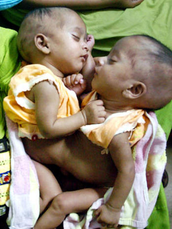 Conjoined twins (WARNING: GRAPHIC IMAGES)