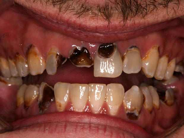 Meth Mouth Inside Look At Icky Problem 15 Graphic Images Photo