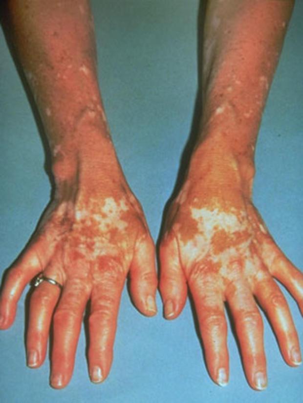 vitiligoarms.jpg