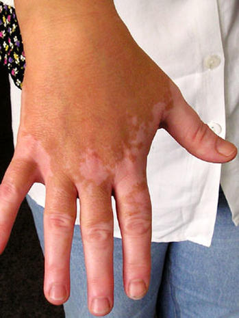 Vitiligo: Illustrated guide to pigmentation disorder