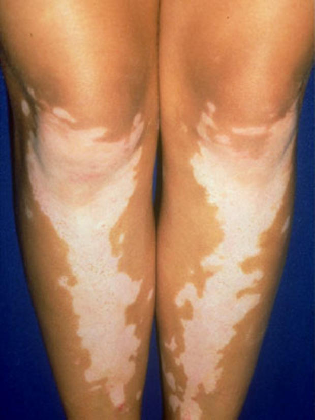 vitiligolegs.jpg