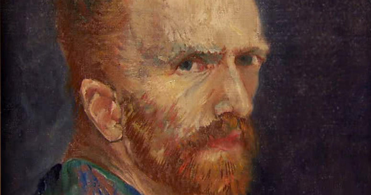 Health of Vincent van Gogh