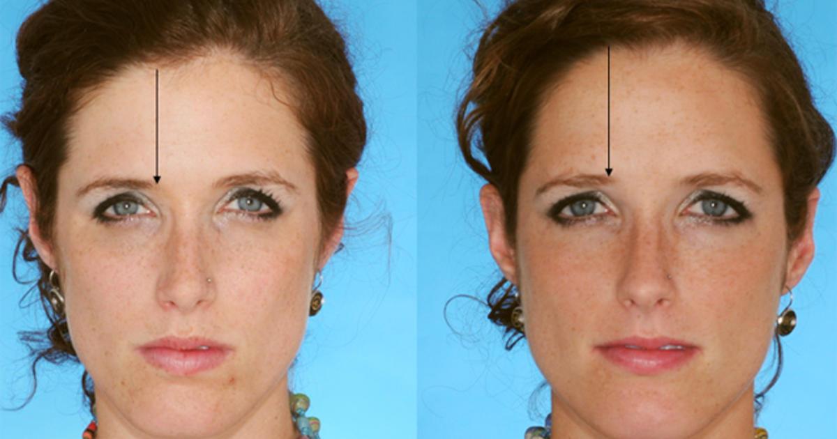 Eek Hair Loss In Women Top 7 Risk Factors Revealed Photo 1
