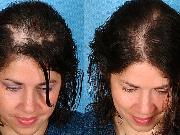 hairlossbeforeafter.jpg