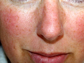 rosacea, flushed, face, red, skin
