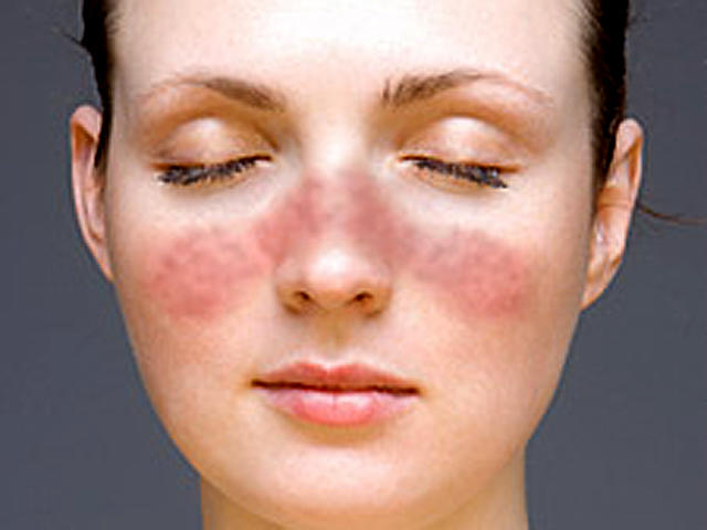 What your looks say about your health - Pictures - CBS News