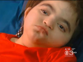 amelia rivera, kidney transplant, Wolf-Hirschhorn syndrome