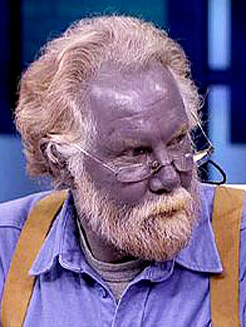 Argyria - 9 uncommon skin conditions - Pictures - CBS News