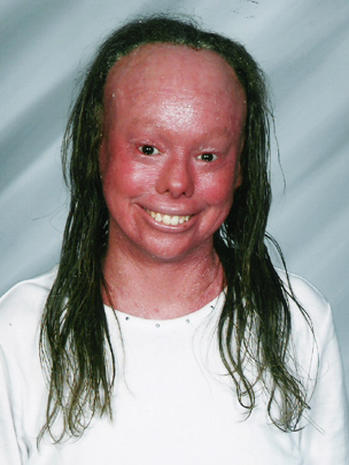 Harlequin Ichthyosis 9 Uncommon Skin Conditions