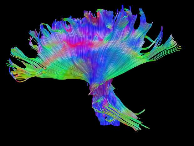 traumatic brain injuries scan