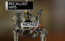 """""""Dangerous Devices"""" - Are medical implants safe?"""