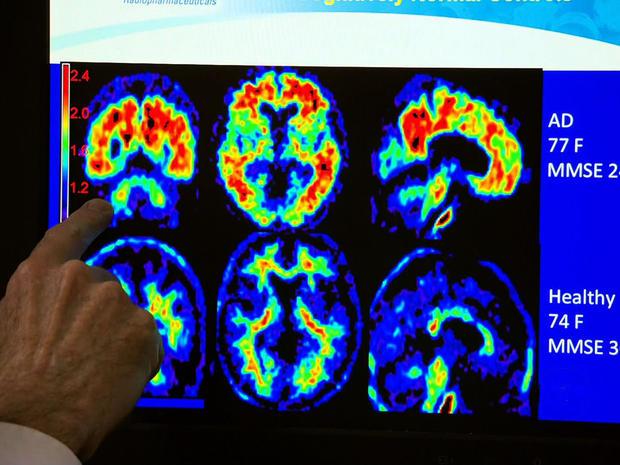 Experimental treatment for Alzheimer's prevention