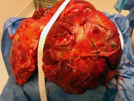 51-pound tumor