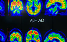 Experimental drug may slow Alzheimer's