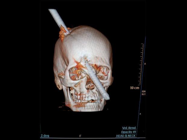 Brazil-bar-through-skull.jpg