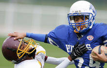 Concern over childhood concussions' long-term impact on the rise