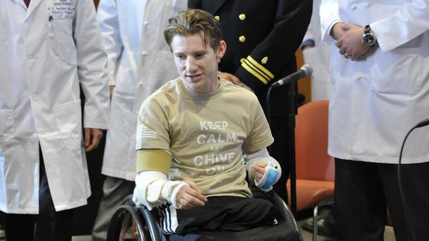 Quadruple amputee vet gets double arm transplant
