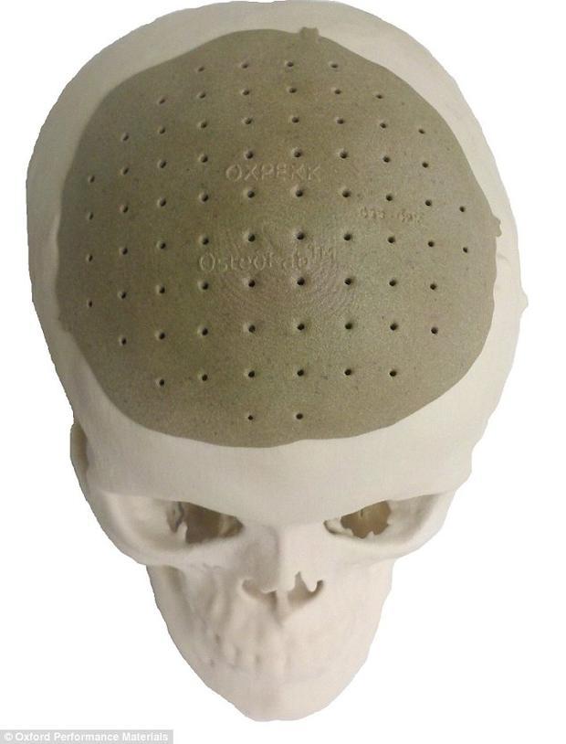Skull implant