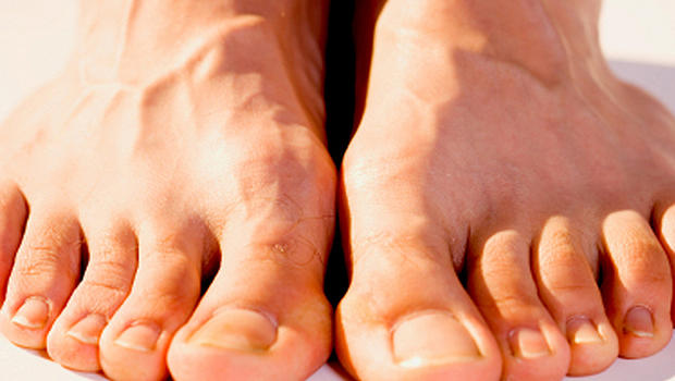 Feet come first when it comes to body parts with most fungi - CBS News