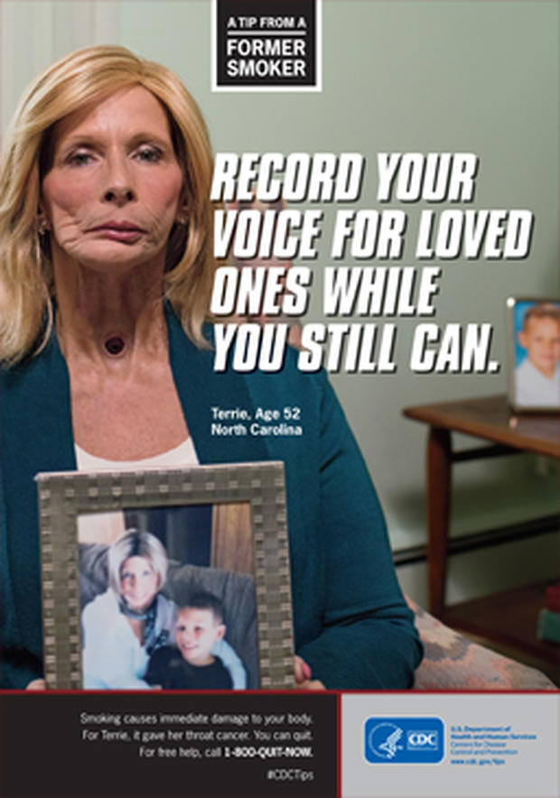 Woman in graphic anti-smoking ad dies from cancer - CBS News