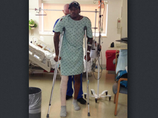 Louisville G Kevin Ware up and moving on crutches today after surgery to repair a broken leg yesterday