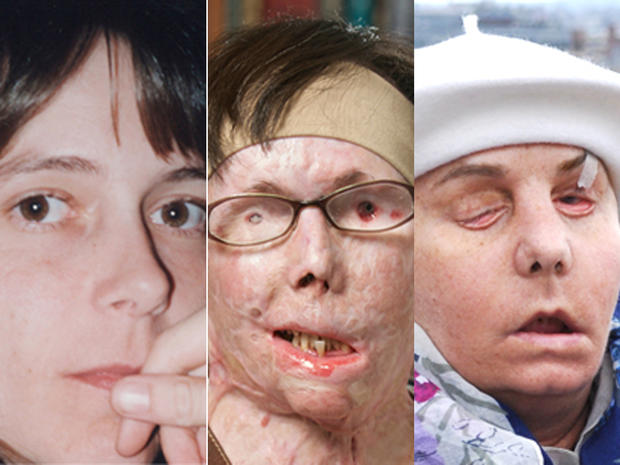 Face Transplant Amazing Face Transplants Graphic Images Pictures Cbs News
