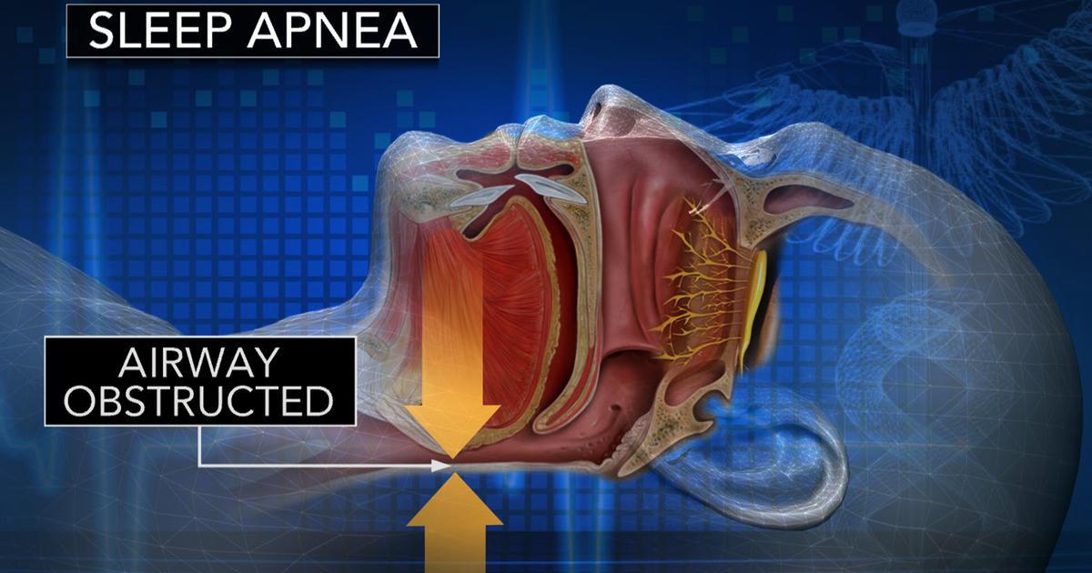 Sleep apnea increases risk of heart attack, study finds - CBS News