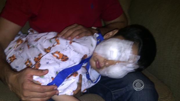 Sajad after surgery to repair his eyesight.