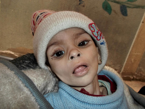 Palestinian refugee in Yarmouk camp who later died of hunger
