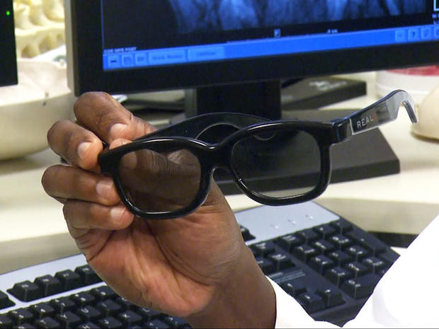 Surgeons use 3D technology in brain surgery - CBS News