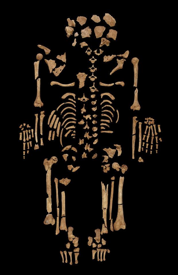 Cancer skeleton