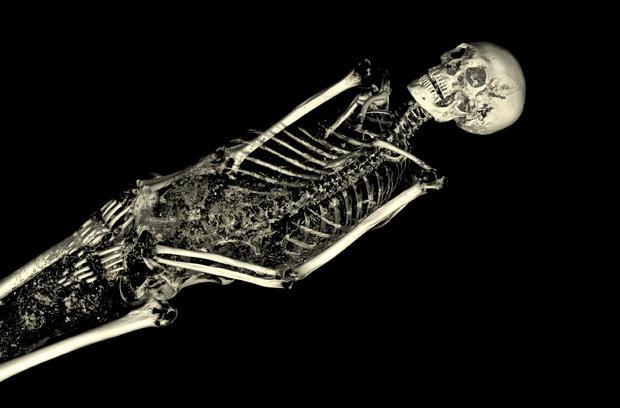 005linenman-body-bones.jpg