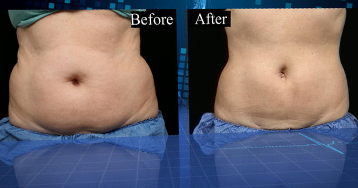 Coolsculpting Remove Fat And Slim Down Without Surgery Cbs News