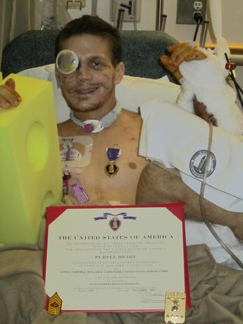 Kyle Carpenter, an American hero