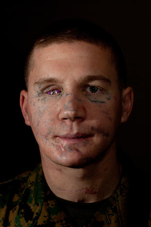 Seems Kyle carpenter before and after surgery authoritative message