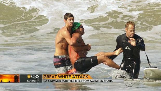 Shark attacks (WARNING: GRAPHIC IMAGES)