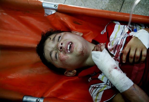 injuredboyap255337669715.jpg
