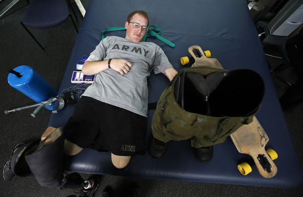 Wounded soldier's remarkable recovery
